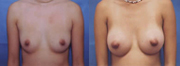 Before and after a breast augmentation - Beverly Hills plastic surgeon