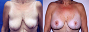 More before and after breast lift photos