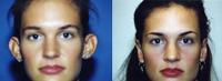 Beverly Hills Otoplasty before and after photos
