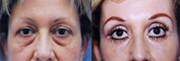 Laser eyelid surgery before and after photos