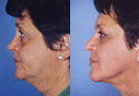 More before and after a Beverly Hills facelift