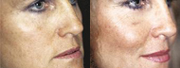 Beverly Hills Facial Implant before and after photos