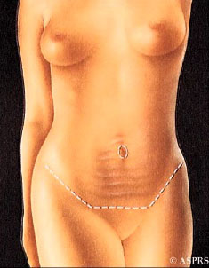 Tummy Tuck Incisions