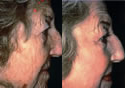 Laser skin resurfacing before and after photos