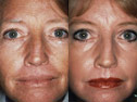Additional Laser skin resurfacing photos